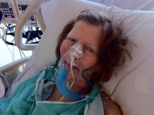 Tuesday Breathing tube removed.